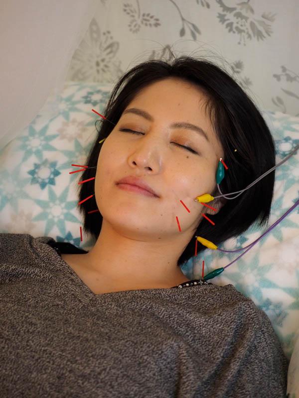 電気をかけるリンパ鍼 画像